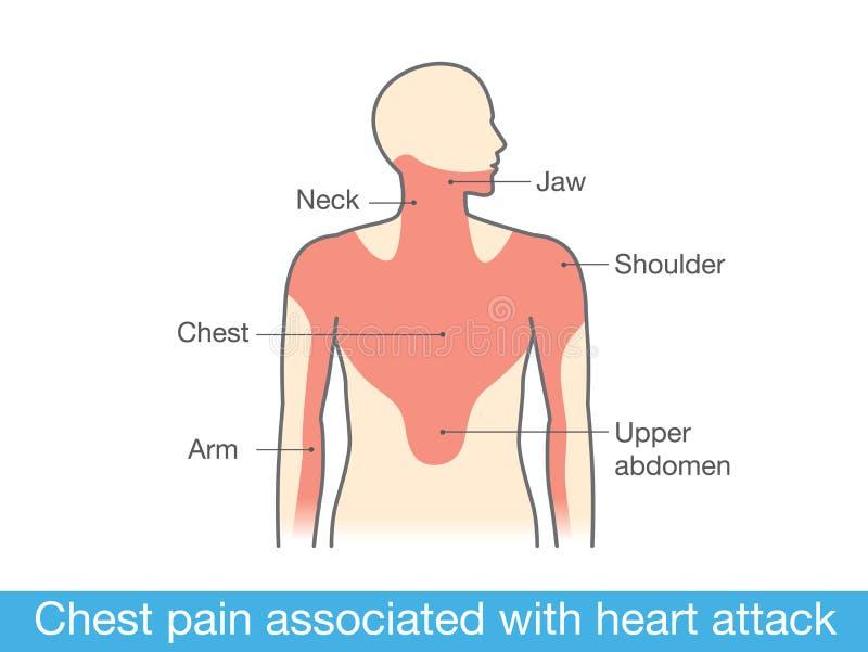 Dolor de pecho asociado a ataque del corazón stock de ilustración