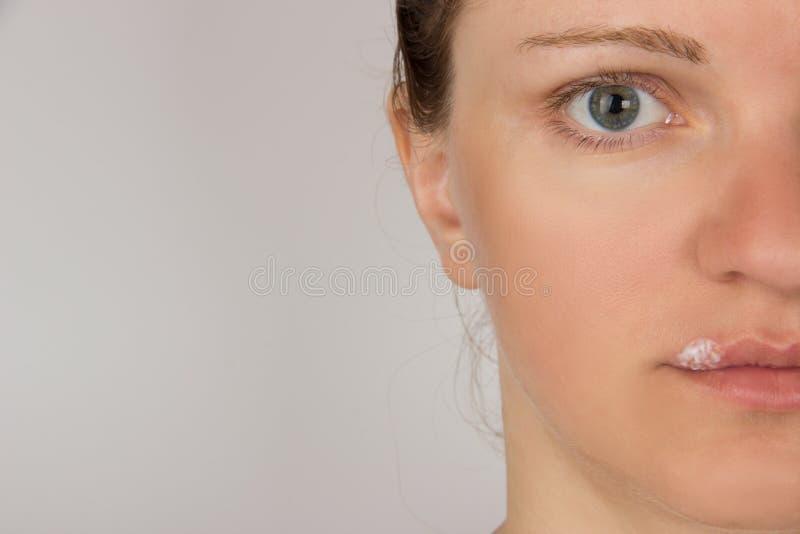 Dolor del herpes con pus en boca de la muchacha hermosa joven y fotografía de archivo libre de regalías