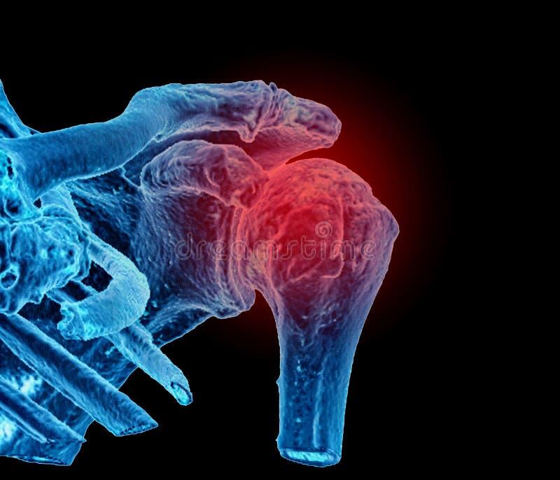 Dolor del hombro, imagen del CT, 3D imagenes de archivo