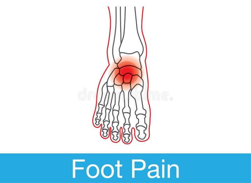 dolor del pie stock de ilustración