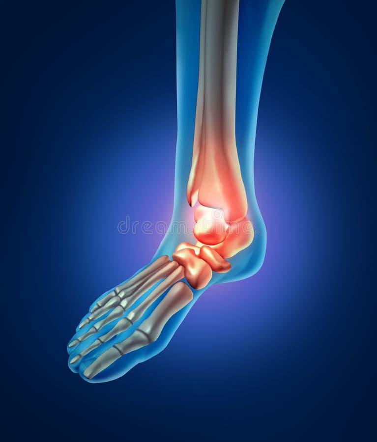 Dolor del pie humano stock de ilustración