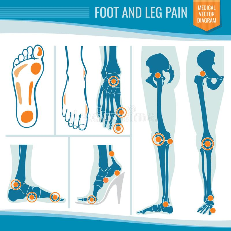 Dolor del pie y de pierna Diagrama médico ortopédico del vector de la artritis y del reumatismo libre illustration