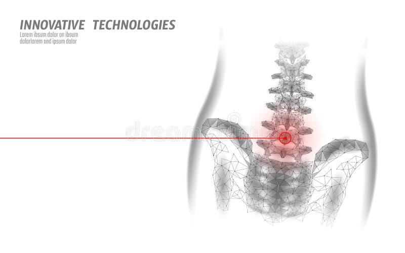 radiculite da neurite lombar