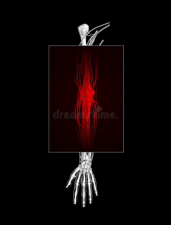 Dolore del braccio royalty illustrazione gratis