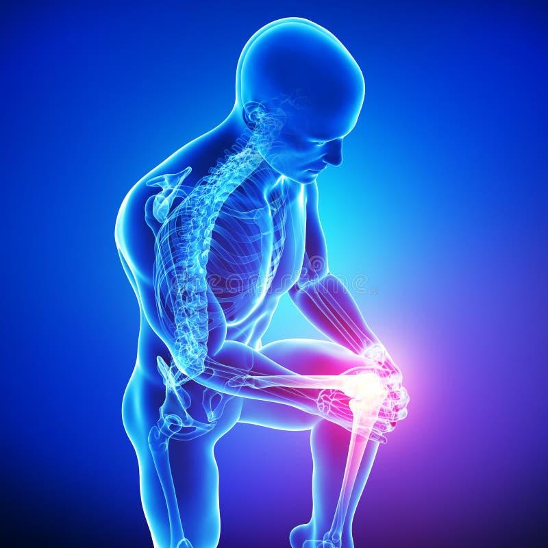 Dolore del ginocchio del maschio illustrazione vettoriale