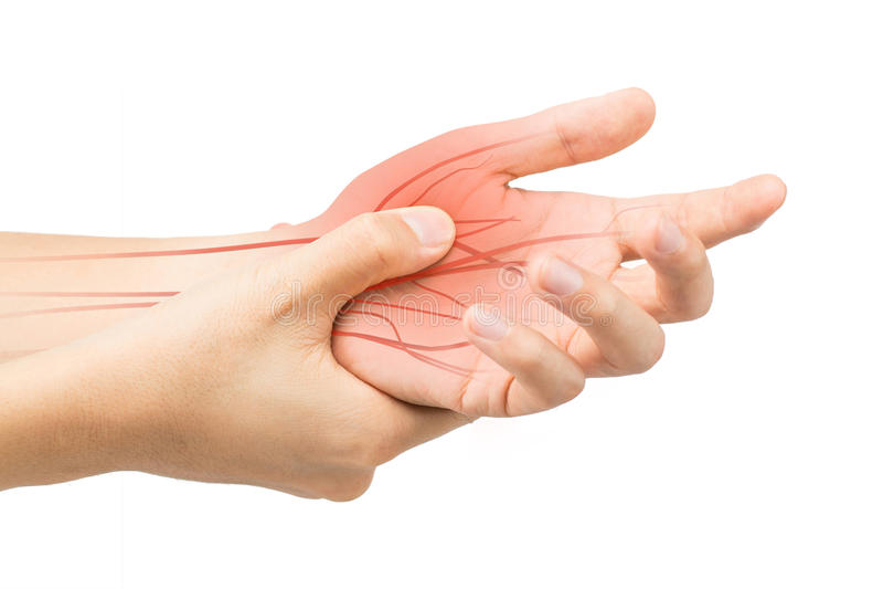 Dolore del nervo della mano immagini stock
