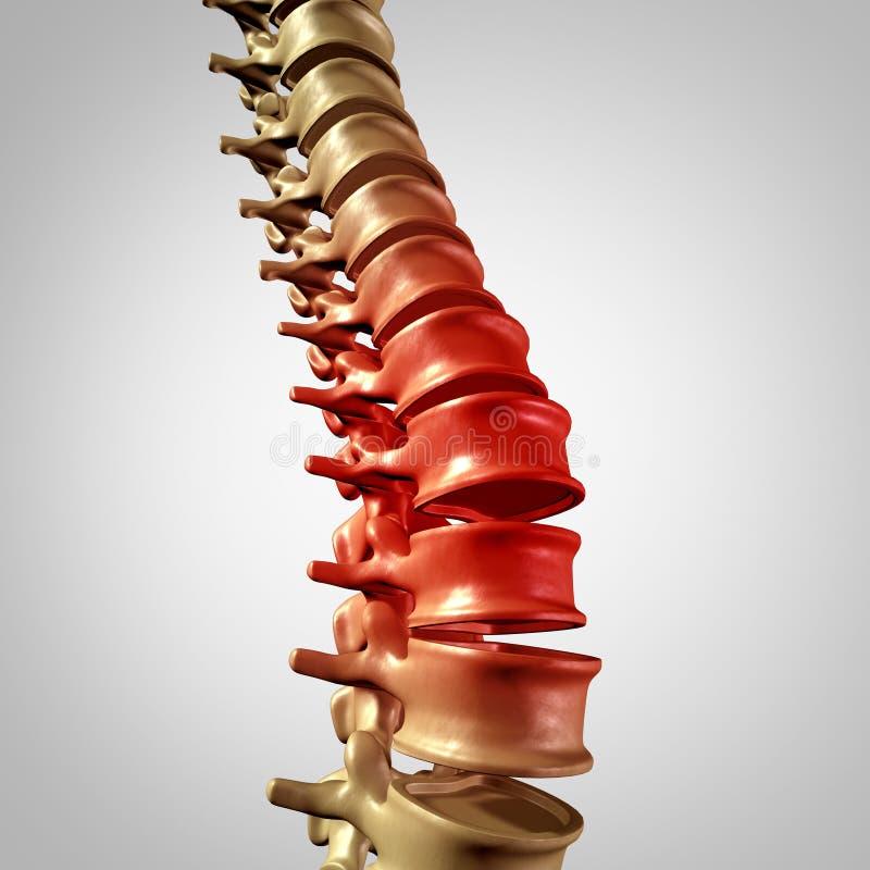 Dolore della spina dorsale illustrazione di stock