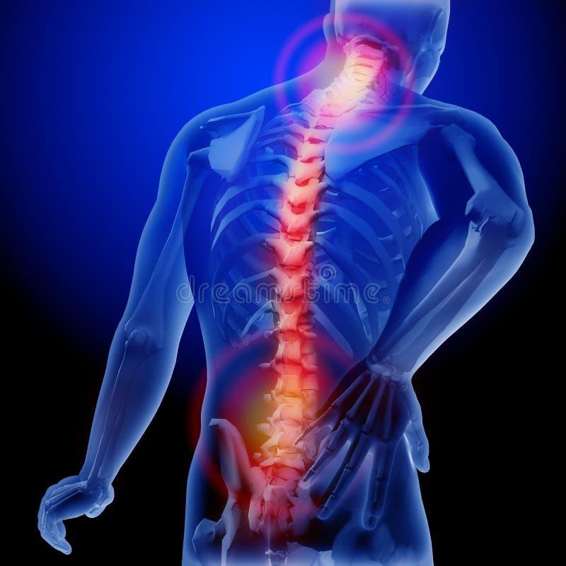 Dolore della spina dorsale Raggi x dello scheletro e del corpo Ente anatomico di un uomo illustrazione medica 3D illustrazione vettoriale