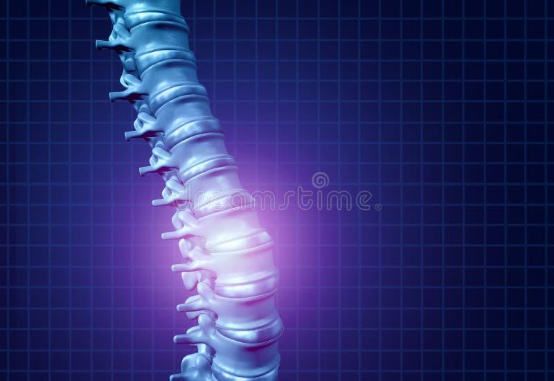 Dolore posteriore della spina dorsale royalty illustrazione gratis