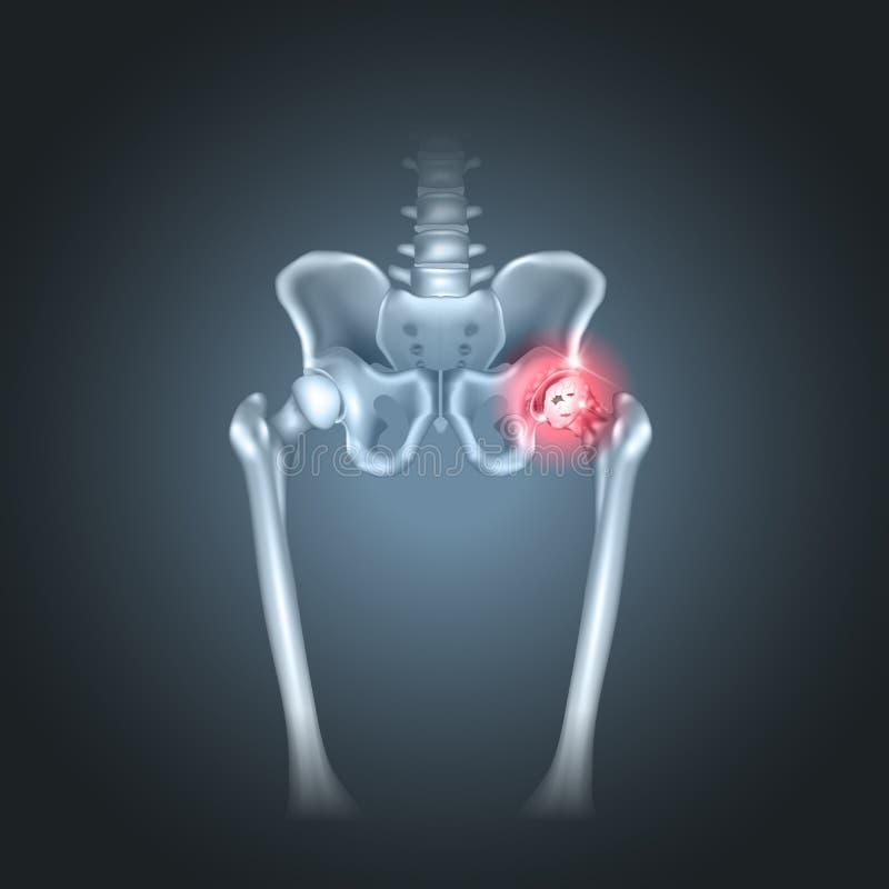 Dolore umano dell'anca del bacino royalty illustrazione gratis