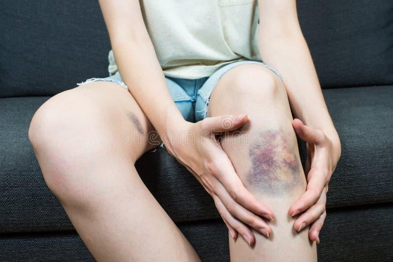 Dommages de contusion sur le jeune genou femelle photo libre de droits