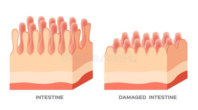 Dommages de doublure d'intestin grêle de maladie coeliaque bons et endommagés villus progression perméable d'intestin illustration de vecteur