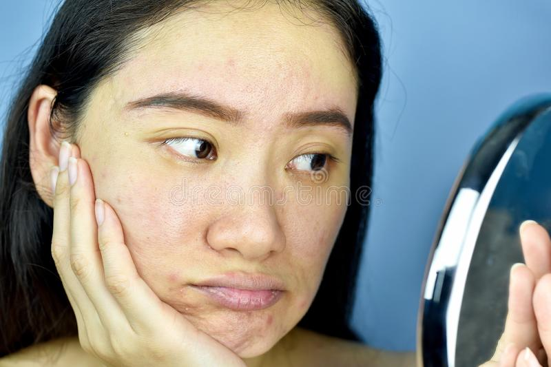 Donna asiatica che la esamina nello specchio, sensibilità femminile per infastidire circa la sua manifestazione di aspetto di rif fotografia stock libera da diritti