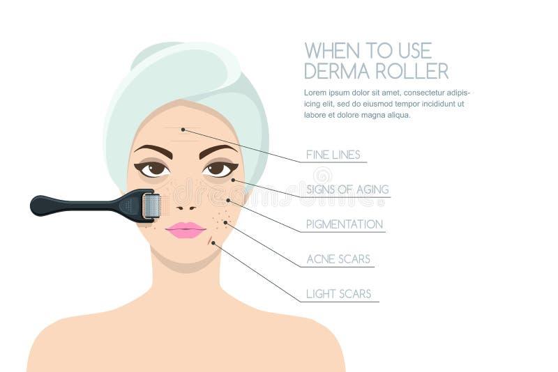 Donna che ha ringiovanire terapia del rullo di derma Progettazione di infographics di vettore illustrazione vettoriale