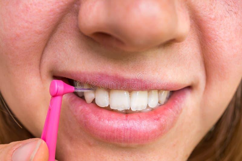 Donna che pulisce i suoi denti con la spazzola interdental fotografia stock