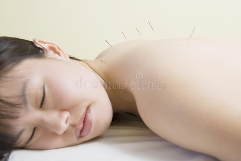 Donna che si trova con gli aghi di agopuntura in lei indietro immagine stock libera da diritti