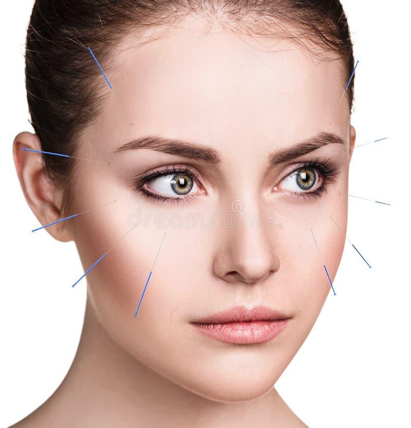 Donna che subisce trattamento di agopuntura immagine stock
