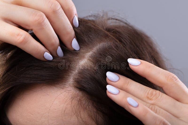 Donna con capelli d'assottigliamento immagini stock