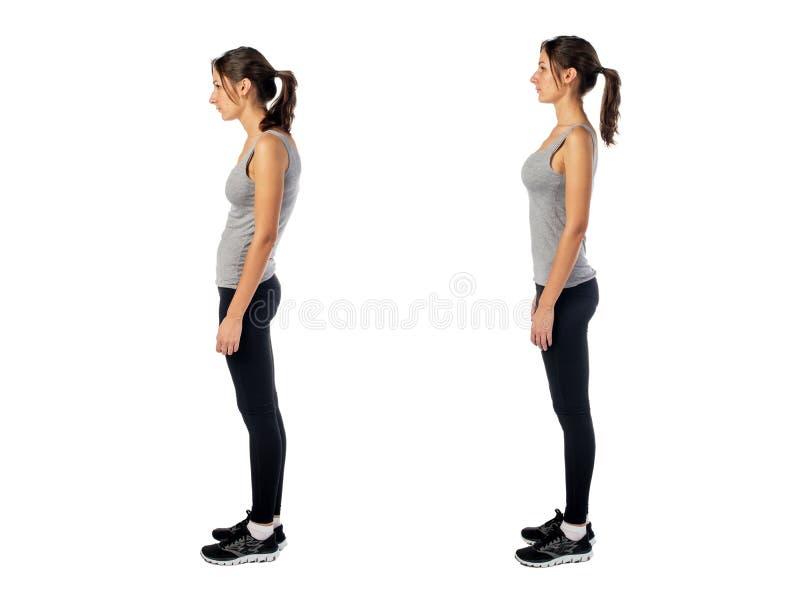 Donna con il difetto alterato di posizione di posizione immagini stock libere da diritti