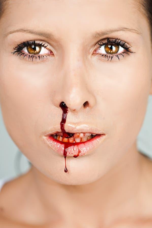 Donna con il radiatore anteriore sanguinante fotografia stock