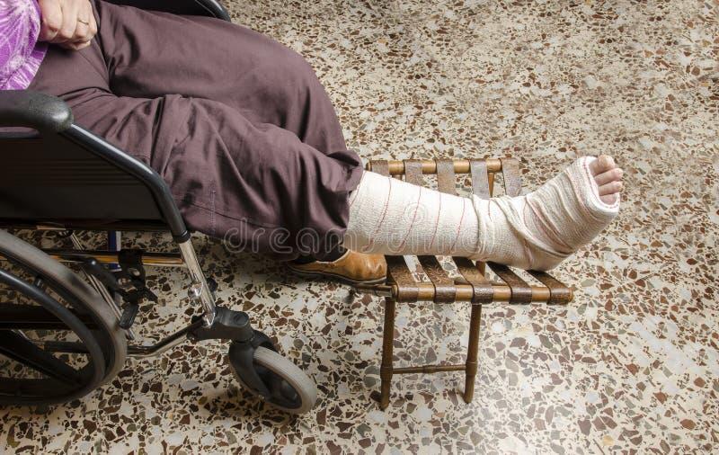 Donna con la sua gamba rotta Braccio in un getto immagini stock libere da diritti