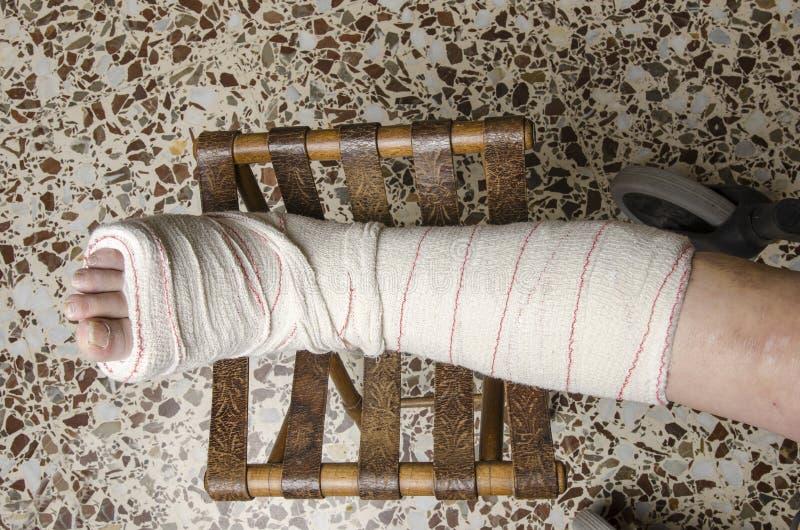 Donna con la sua gamba rotta Braccio in un getto immagine stock