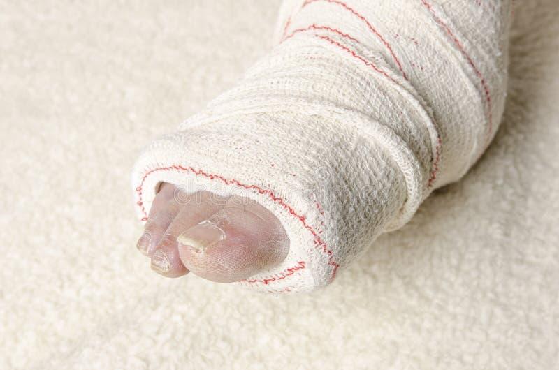 Donna con la sua gamba rotta Braccio in un getto immagini stock