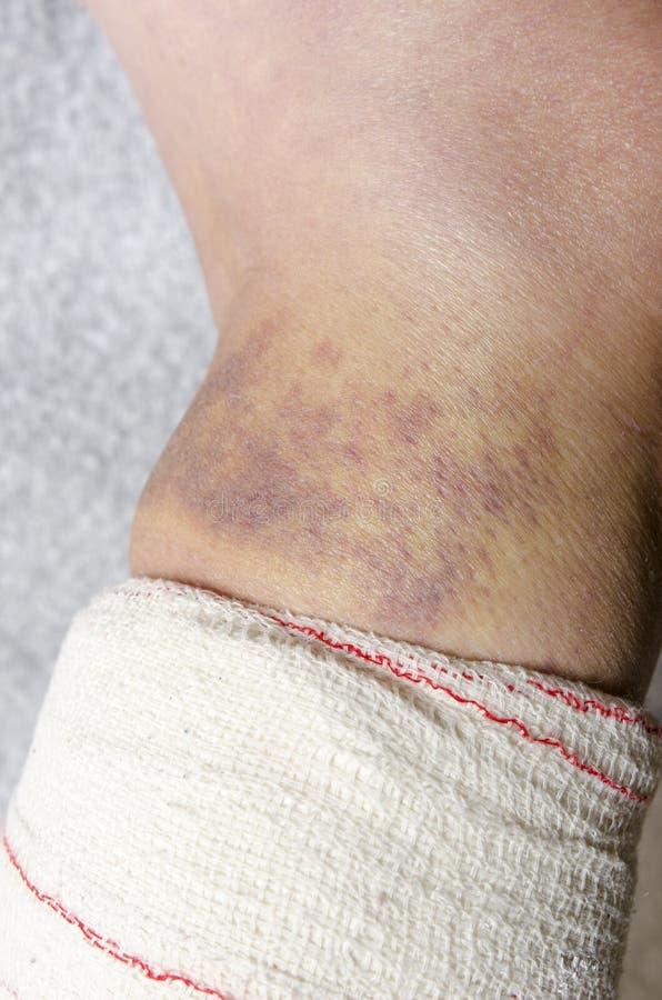 Donna con la sua gamba rotta Braccio in un getto fotografie stock libere da diritti