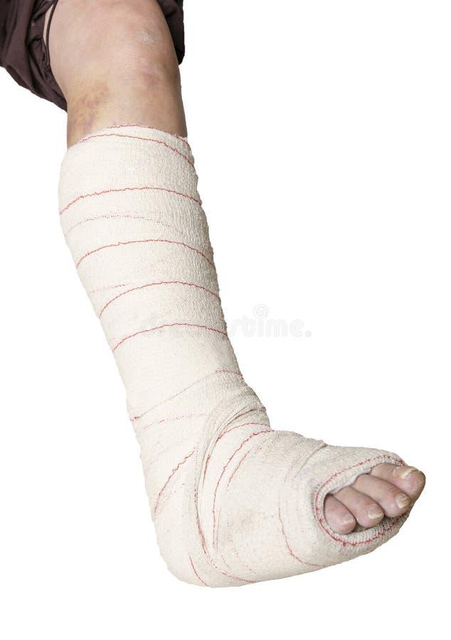 Donna con la sua gamba rotta Braccio in un getto fotografia stock