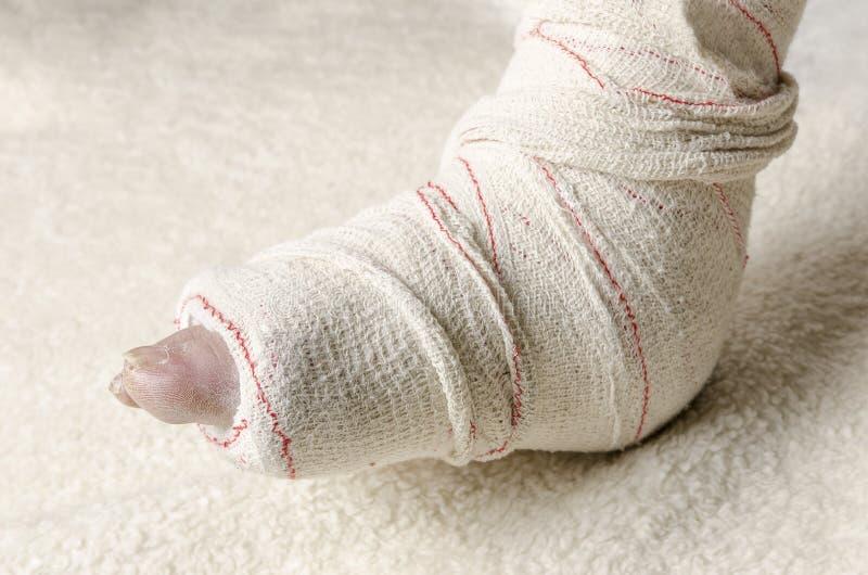 Donna con la sua gamba rotta Braccio in un getto fotografia stock libera da diritti