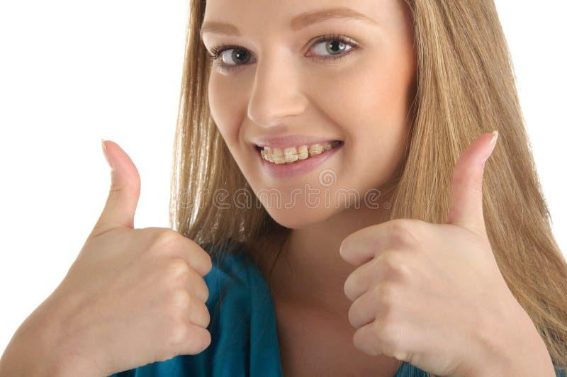 Donna con le parentesi sui denti fotografia stock libera da diritti
