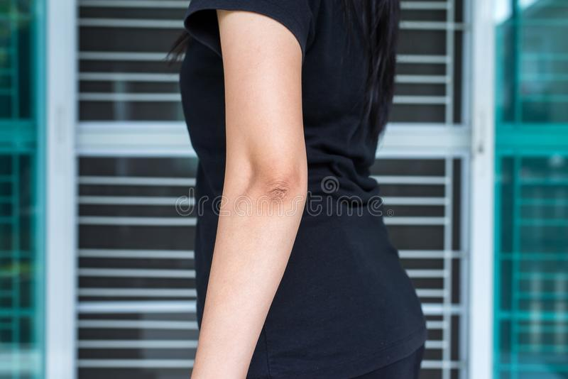 Donna con pelle asciutta sul gomito e sul braccio, sul concetto di sanità e del corpo immagini stock libere da diritti