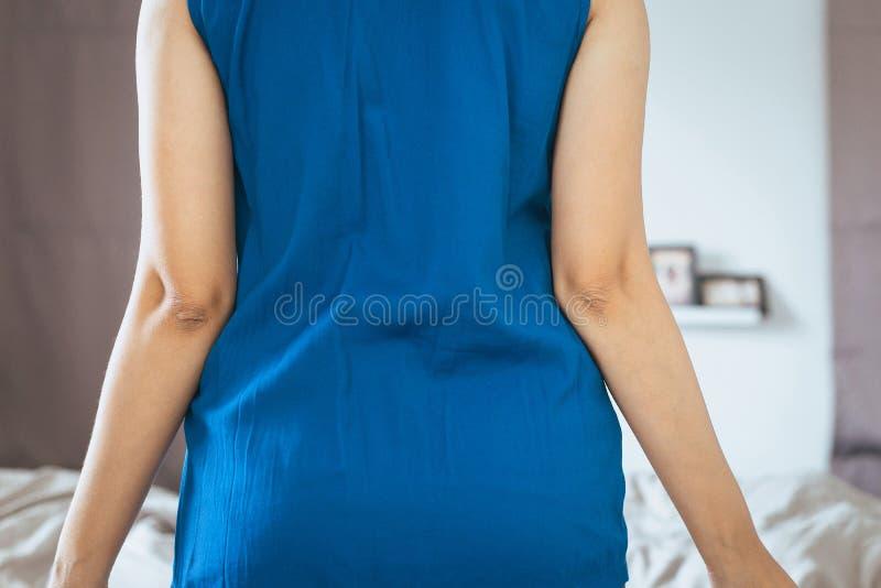 Donna con pelle asciutta sul gomito e sul braccio, sul concetto di sanità e del corpo fotografia stock libera da diritti