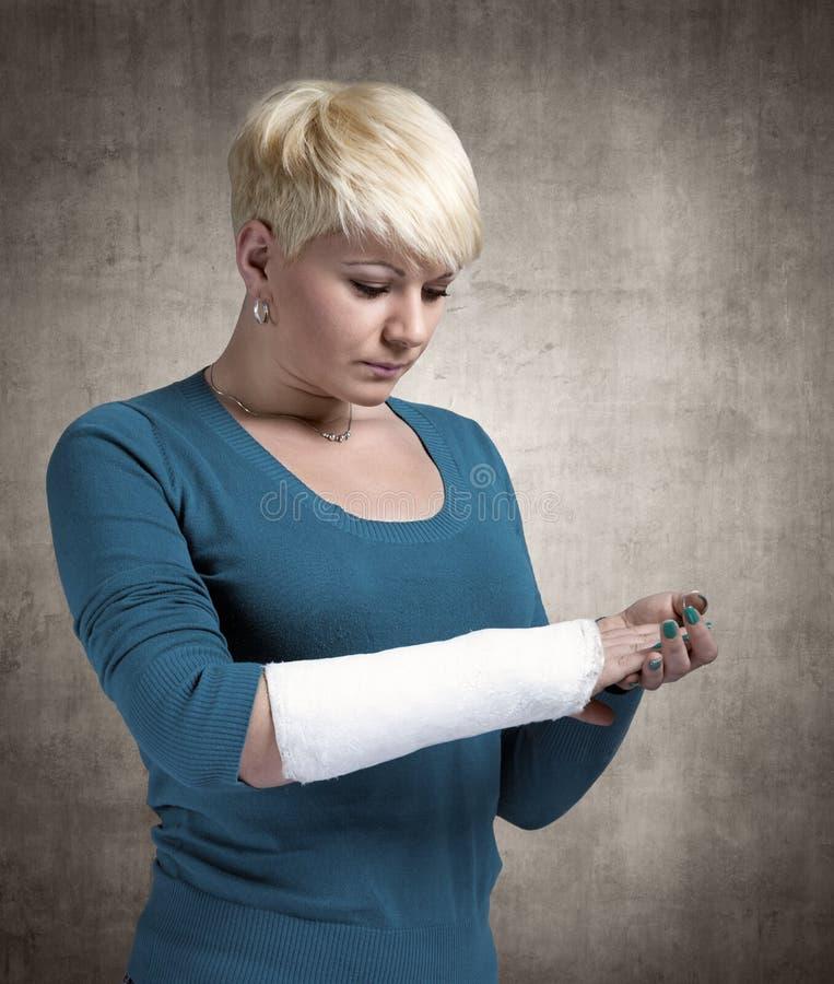 Donna con un braccio rotto immagini stock