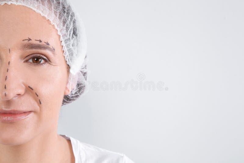 Donna matura con i segni sul fronte che prepara per la chirurgia estetica contro il fondo bianco, primo piano immagini stock