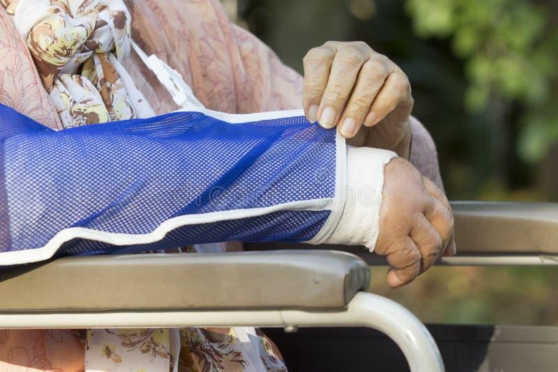 Donna senior con un braccio rotto fotografie stock