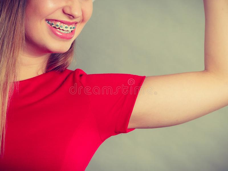 Donna sorridente che ha ganci sui denti fotografia stock libera da diritti