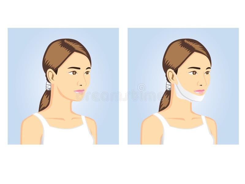 Donne di bellezza con la maschera di forma di v illustrazione vettoriale