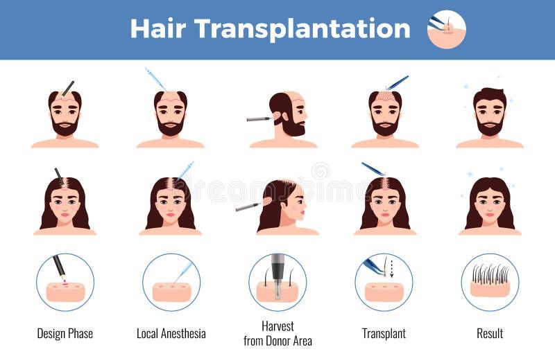 Donne Infographics degli uomini di trapianto dei capelli illustrazione di stock