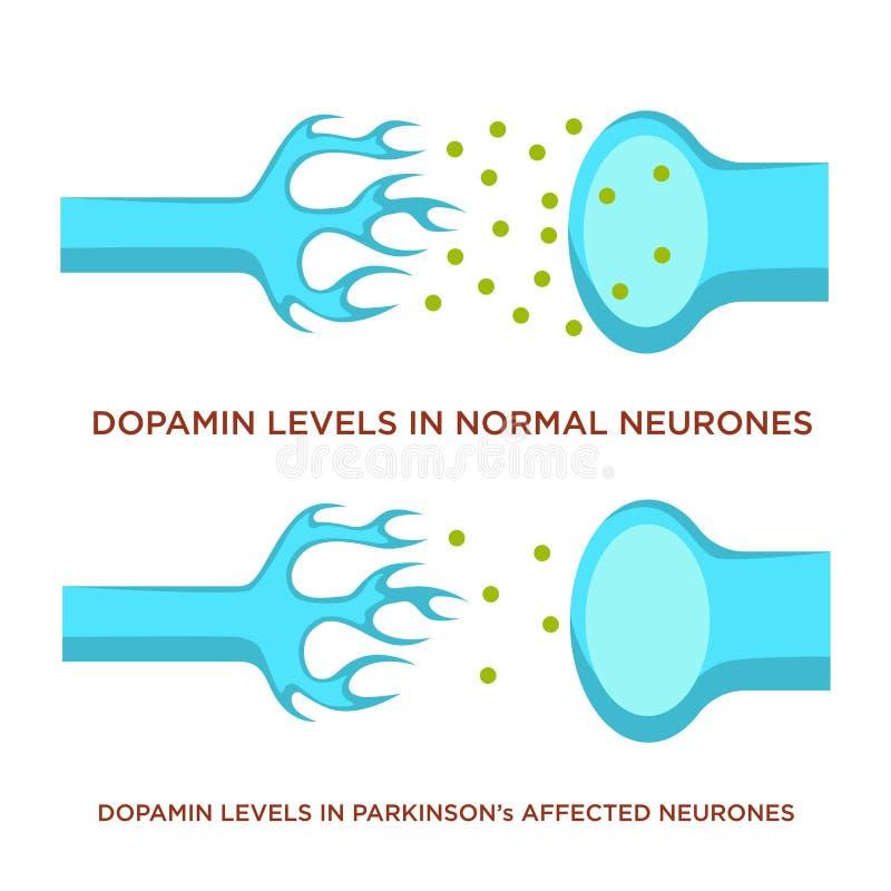 Dopamin nivå i normala neurones och med den Parkinson sjukdomen royaltyfri illustrationer