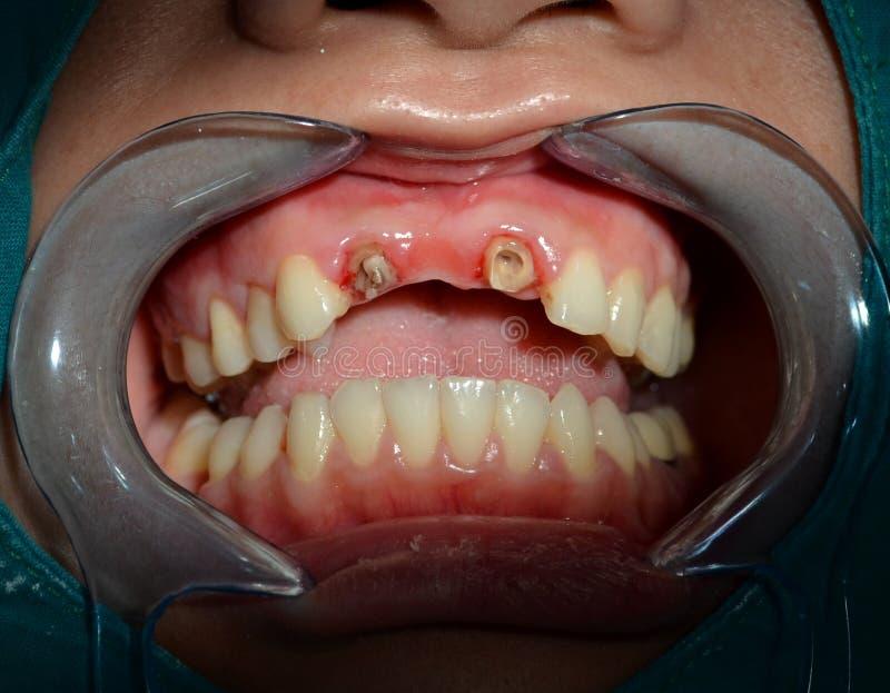 Dopo rimuova tutto il ponte ceramico dei denti superiori anteriori immagine stock