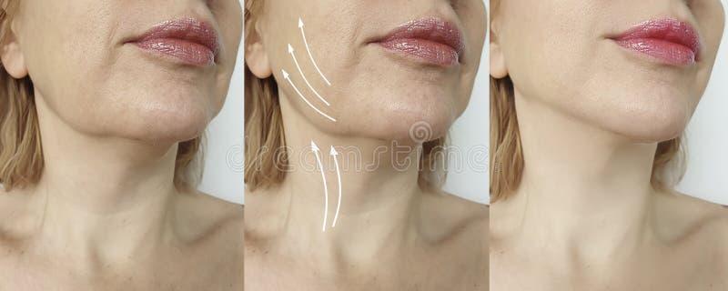 Doppio mento della donna prima e dopo la correzione di trattamento immagine stock