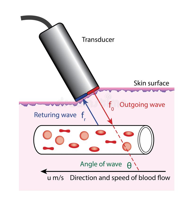 Doppler blood flow measurement. Diagram of Doppler blood flow measurement, showing the transducer on the surface of the skin, and the angle of the outgoing and vector illustration
