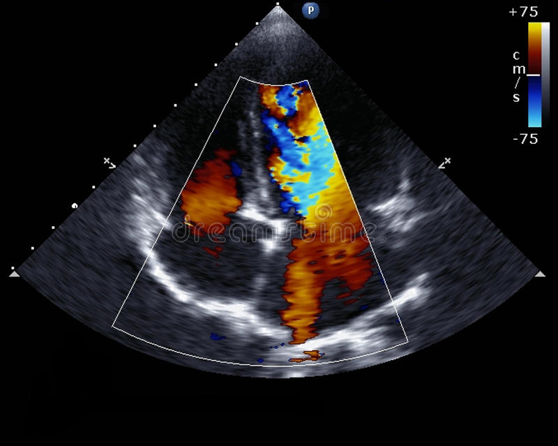 Doppler-echocardiografie stock illustratie