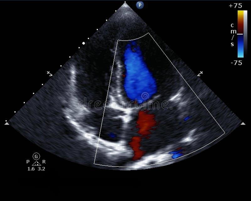 Doppler-echocardiografie royalty-vrije stock afbeeldingen