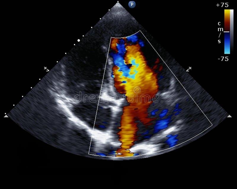 Doppler echocardiography royaltyfri foto