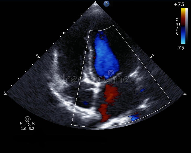 Doppler echocardiography royalty free stock images