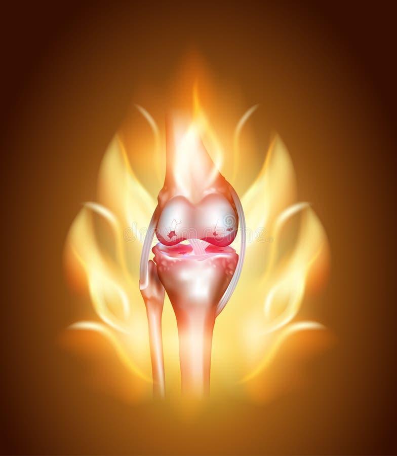 Dor articular do joelho, joelho ardente ilustração royalty free
