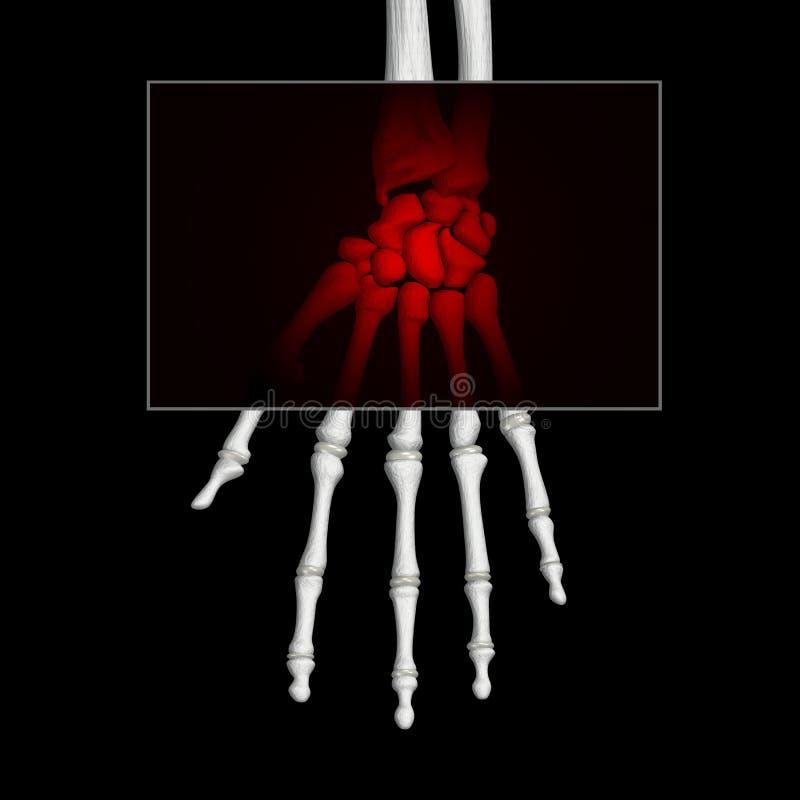 Dor da mão ilustração do vetor