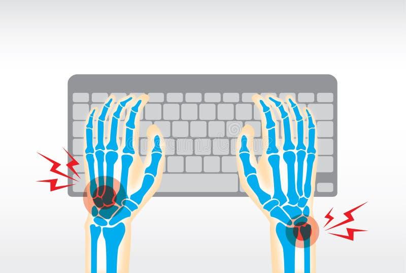 Dor da mão do teclado do uso ilustração stock